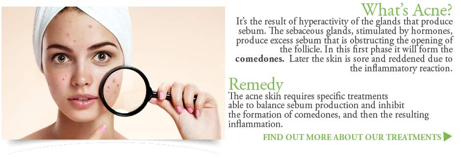 Acne causes and remedies